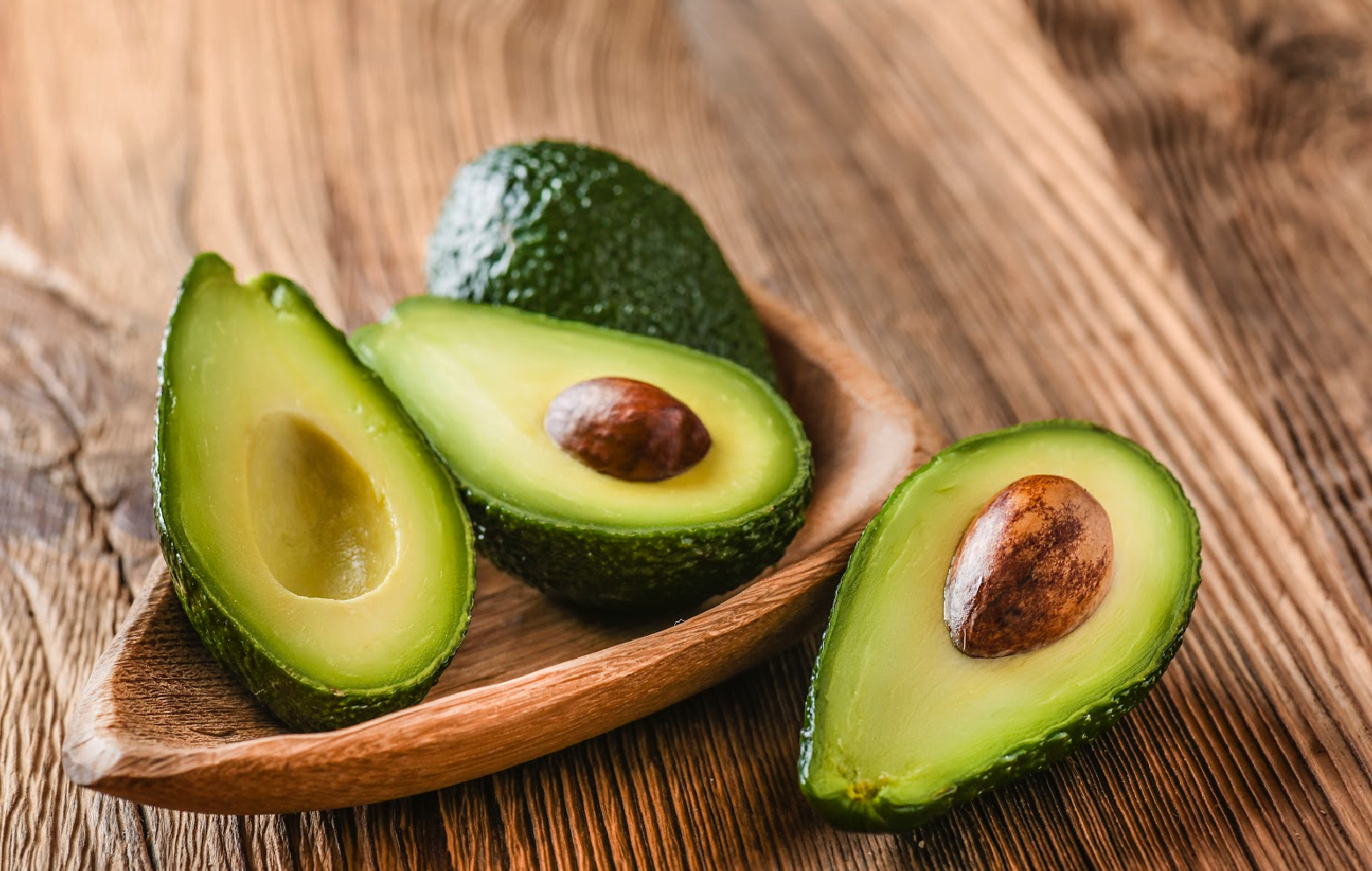things to know about avocados